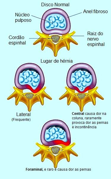 hérnia de disco,lombar,inflamação,dor,espinha,vértebra,coluna