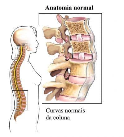 Disco,vertebral,corpo,curvas,coluna,vertebral