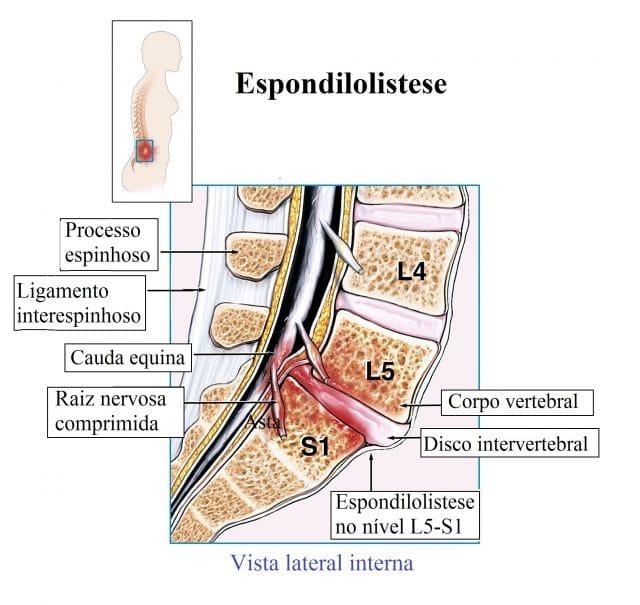 Espondilolistese