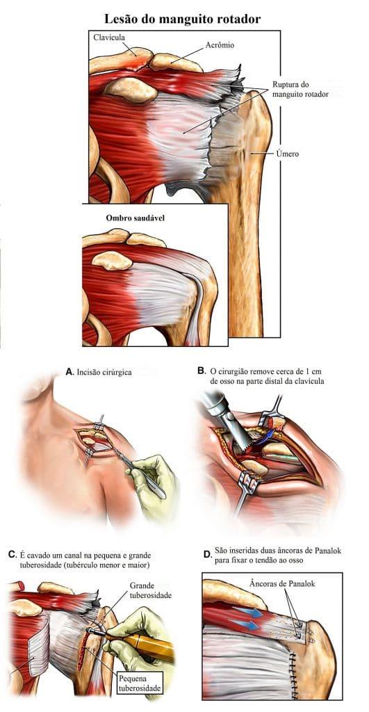 Manguito,rotador,quebra,reparação,cirúrgica