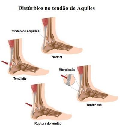 Tendinite,do,tendão,de,Aquiles