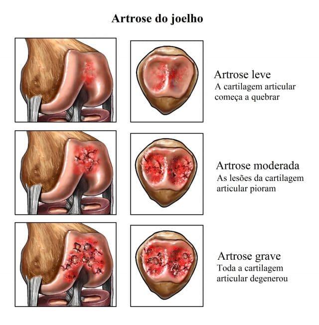 remedios para cartilagem dos joelhos