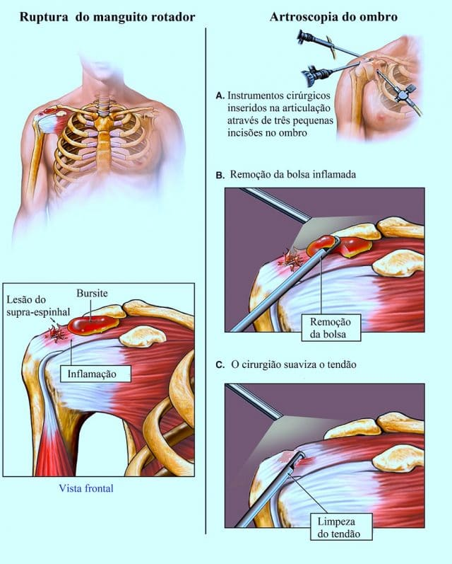 bursite,lesões,manguito,rotador,bursectomia,limpeza