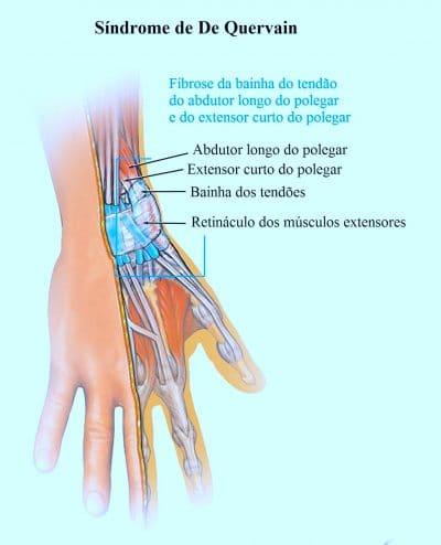 tendinite, extensores do punho, supinador, pronator