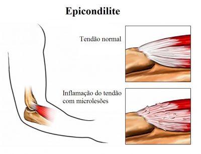 epicondilite,inflamação,dos,tendões,do,cotovelo