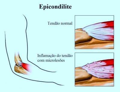 epicondilite,tendinite,do,cotovelo
