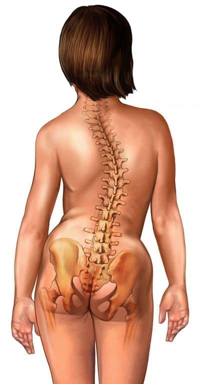 escoliose,coluna,vertebral