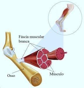 banda craniana do tecido conjuntivo, osso esfenóide, manipulação, massagem, inflamação, tendinite, contratura, aderência, pontes de colagénio, dor, dor, fisioterapia e riabilitazionefascia, músculos, ossos, tendões,