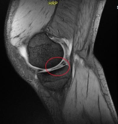 Ressonância magnética,joelho,lesão do menisco