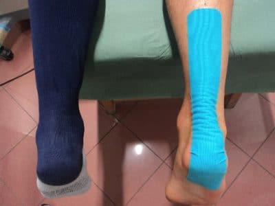 Tratamento para tendinite de Aquiles