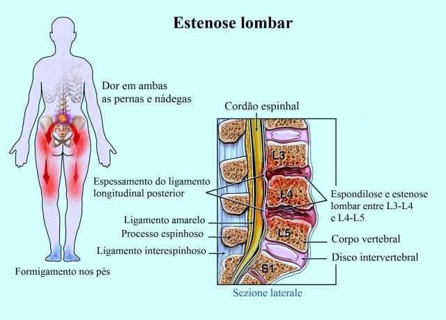 Estenose,lombar