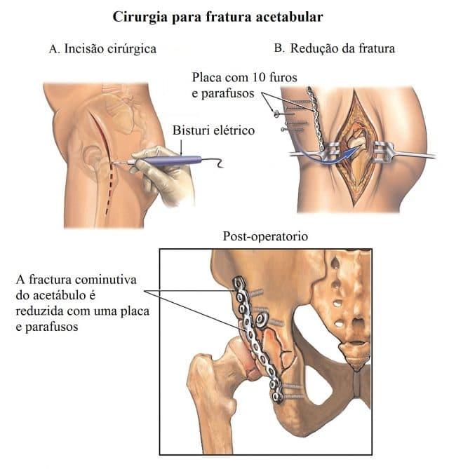 fratura,acetábulo,intervenção,cirúrgico