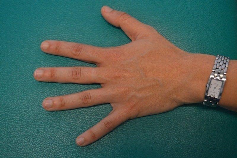 mão,normal,inchaço,dor, trauma,sintomas,tratamento,cuidados