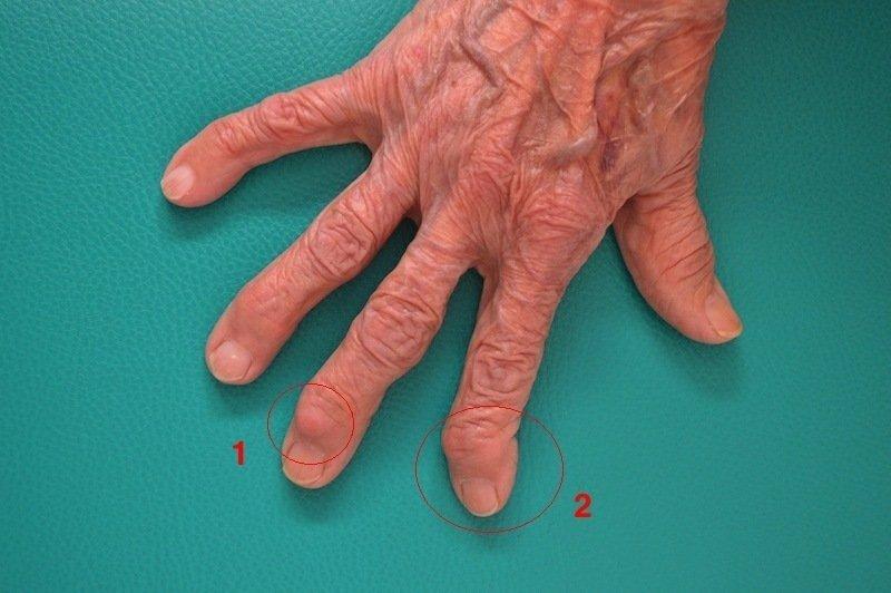 artrose,dedos,mão,nódulo,Heberden,desvio,falangeta