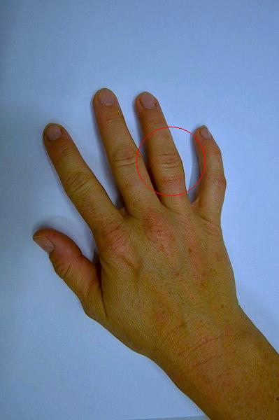 Dedo inchado