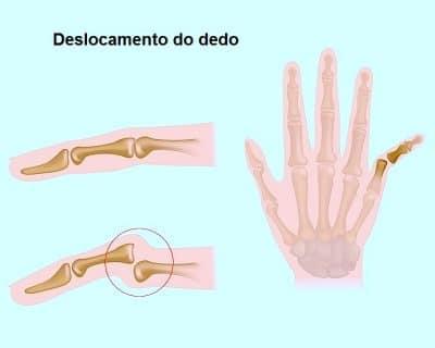 Fratura dos dedos