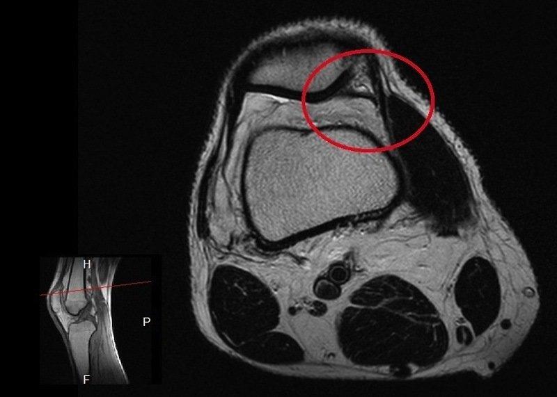síndrome de plica,joelho medial,patela