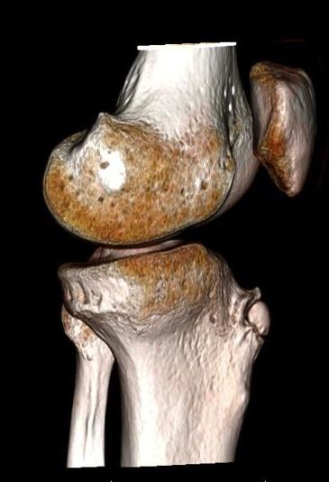Osteocondrose e osteocondrite