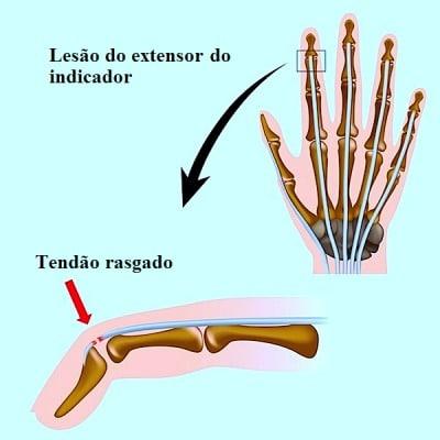 Trauma nos dedos
