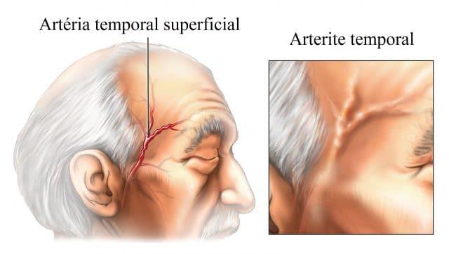 arterite,temporal,de,Horton