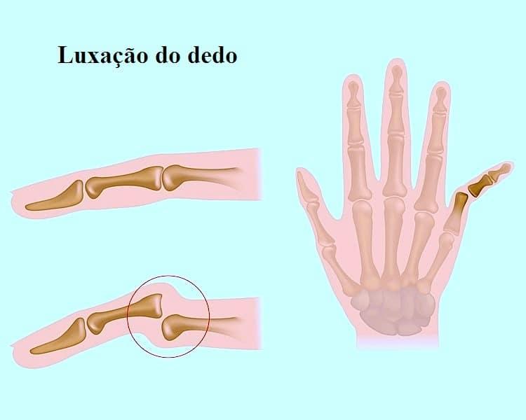 luxação de dedo,dor,inchaço,mão inchada,cuidados,tratamento