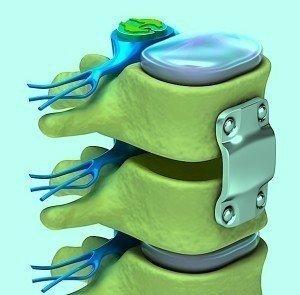 cirúrgia,placas,parafusos,vértebra,fusão,dor
