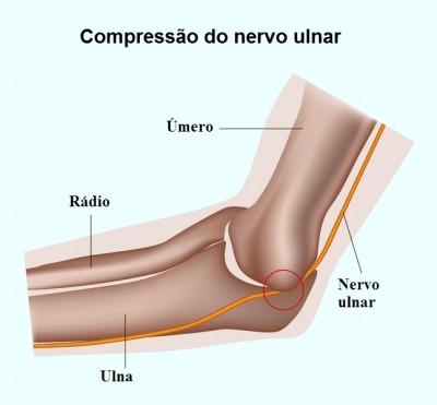 Formigamento, nervo ulnar, compressão, mão, dedos, cotovelo