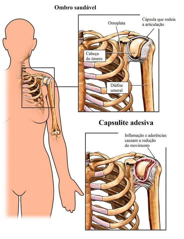 capsulite,adesiva,e,normal