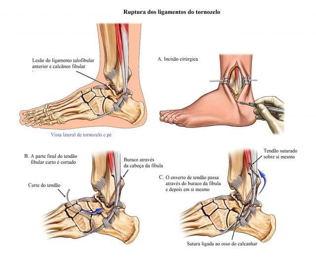 cirurgia,para,entorse,de,tornozelo