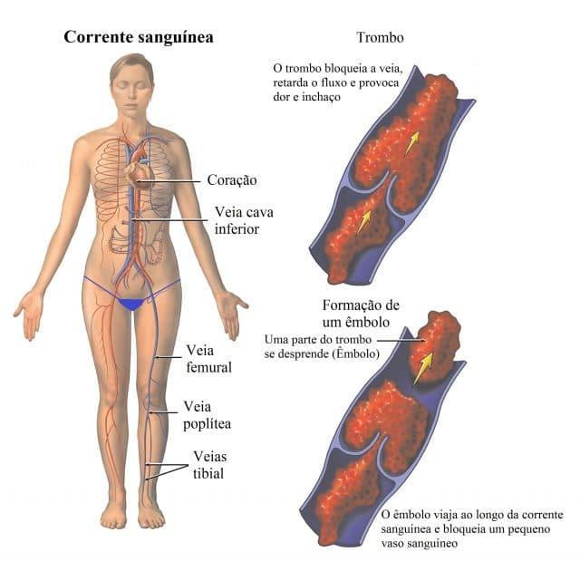 embolia,pulmonar