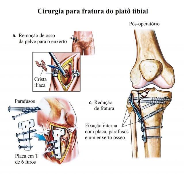 fractura,joelho,intervenção