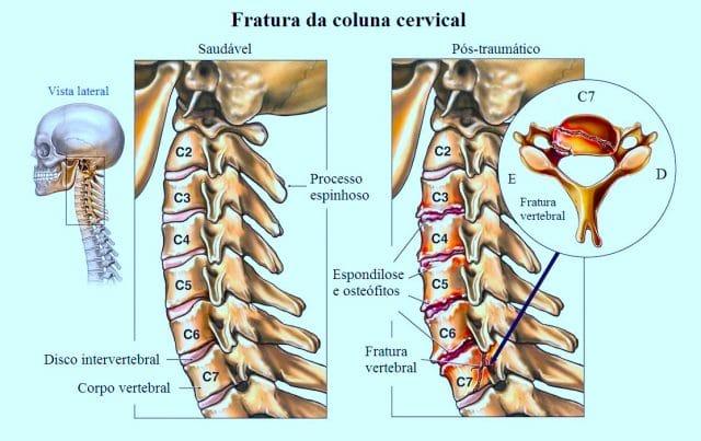 fratura,cervical