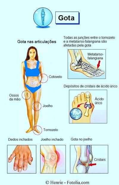 sintomas da gota,articulação,articulações,ácido úrico