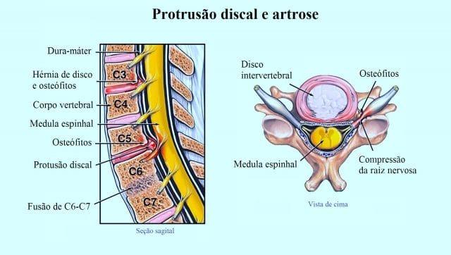 hérnia cervical,osteófitos,cervicobraquialgia