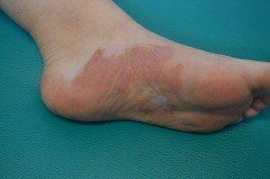 psoríase, corsitone, o tratamento, a irritação, a inflamação, a reacção, a doença auto-imune da pele