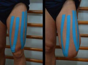 Kinesio taping, fita adesiva, contração, cãibras, lesões, quadríceps