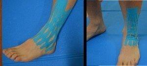 Kinesio Taping, entorse do tornozelo,inchado