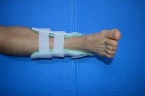 tornozeleira,tutor, entorse, fratura, lesão,dor, bloco, limite, movimento, tornozelo, perna