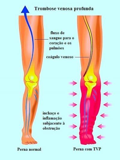 Dor na perna direita ou esquerda