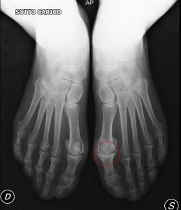 dedão do pé, rígido, dor, restrição de movimentos, osso metatarsal, osteoartrite