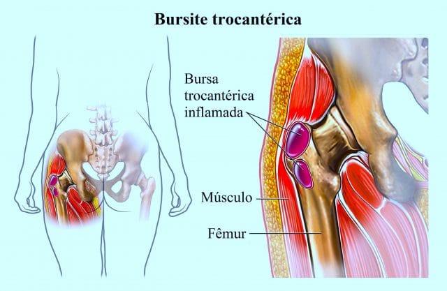bursite,trocantérica,quadril