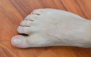 os dedos dos pés, garra, em segundo, dor, deformação, malformação, deformidade