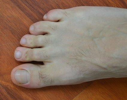 dores agudas no dedão do pé