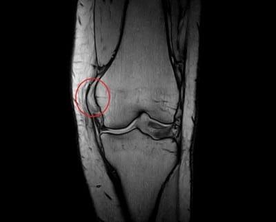 Ressonância magnética,lesão do ligamento colateral medial,joelho