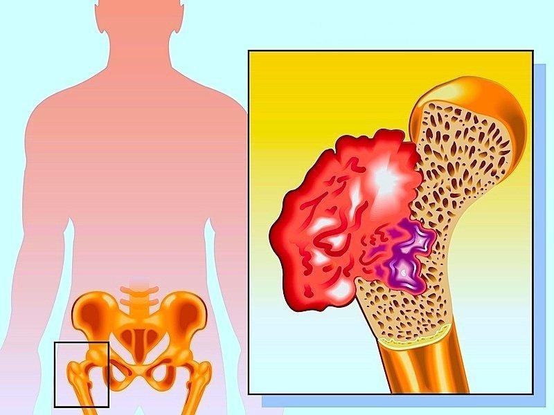 câncer, osteosarcoma, quadril, fêmur, dor, apoio