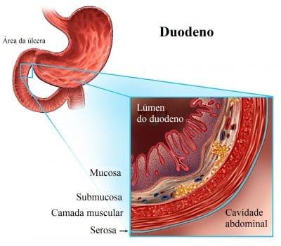 duodeno,úlcera,abdominal
