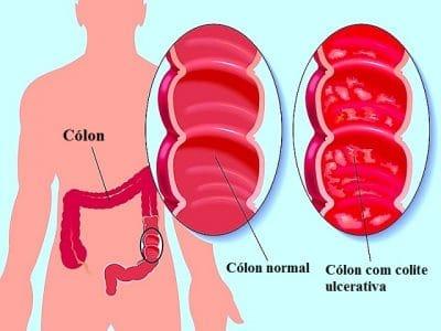 Colite ulcerativa