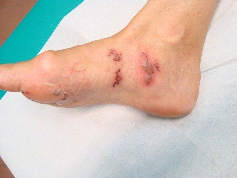 Psoriasi di trattamento di dita del piede