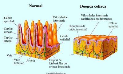 Doença celíaca ou intolerância ao glúten