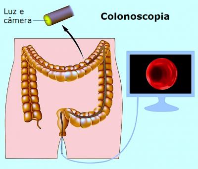 Exame de colonoscopia